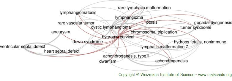 Diseases related to Hygroma Cervical