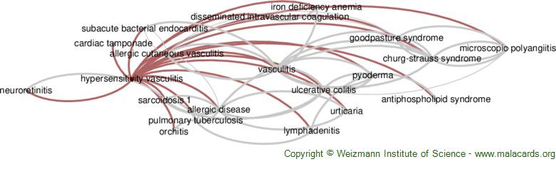 Diseases related to Hypersensitivity Vasculitis
