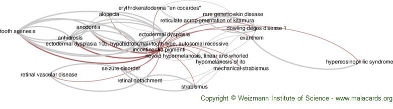 Diseases related to Incontinentia Pigmenti