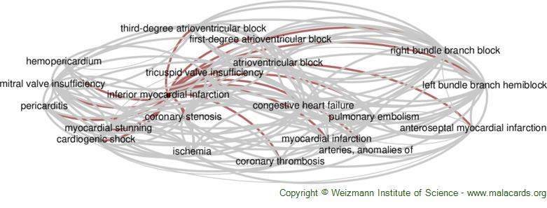 Diseases related to Inferior Myocardial Infarction