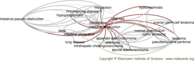 Diseases related to Intestinal Obstruction
