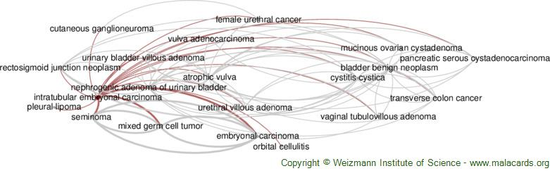Diseases related to Intratubular Embryonal Carcinoma