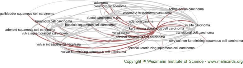 Diseases related to Keratinizing Squamous Cell Carcinoma