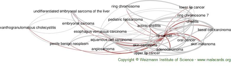 Diseases related to Lip Cancer