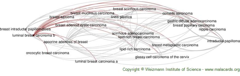 Diseases related to Luminal Breast Carcinoma B