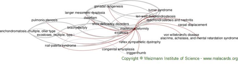 Diseases related to Madelung Deformity