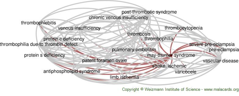 Diseases related to May-Thurner Syndrome