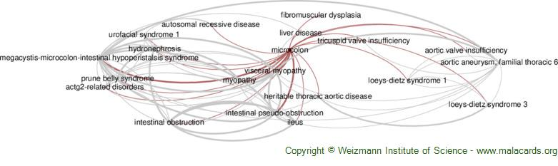Diseases related to Microcolon
