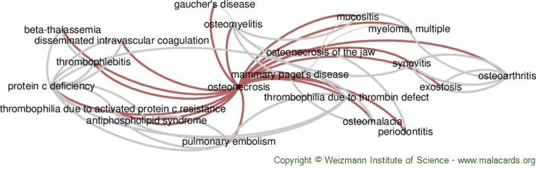 Diseases related to Osteonecrosis
