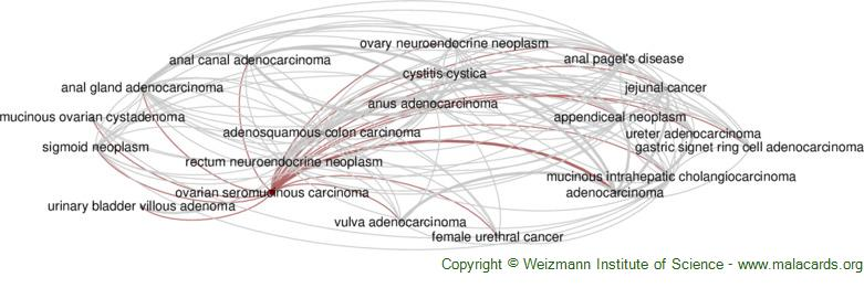 Diseases related to Ovarian Seromucinous Carcinoma