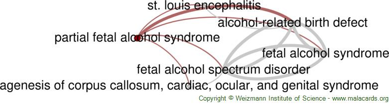 Diseases related to Partial Fetal Alcohol Syndrome