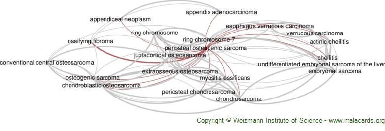 Diseases related to Periosteal Osteogenic Sarcoma