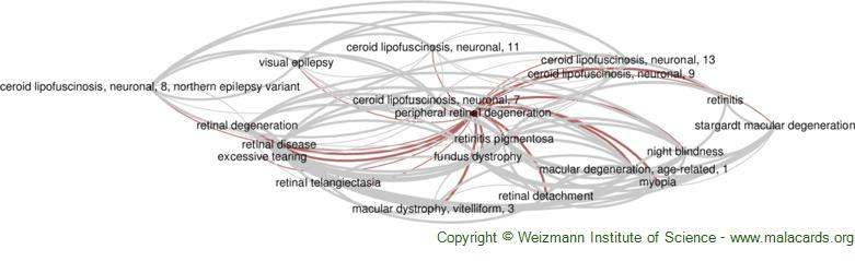 Diseases related to Peripheral Retinal Degeneration