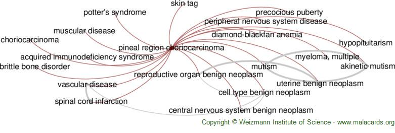 Diseases related to Pineal Region Choriocarcinoma