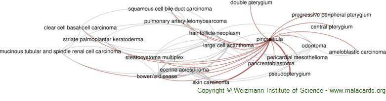 Diseases related to Pinguecula