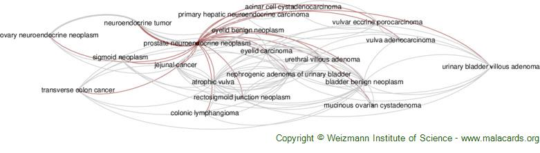 Diseases related to Prostate Neuroendocrine Neoplasm