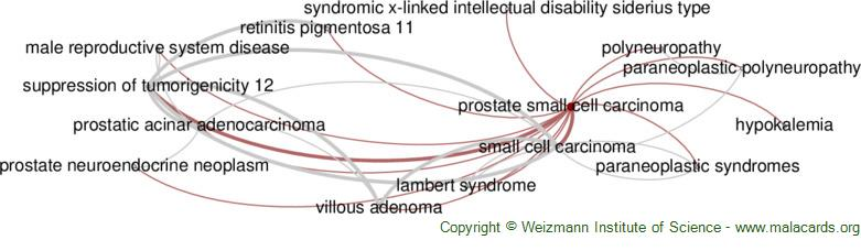 Diseases related to Prostate Small Cell Carcinoma
