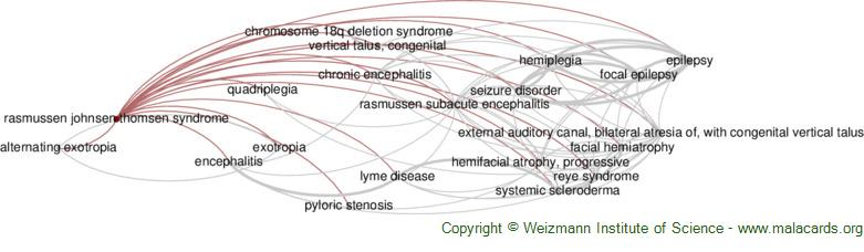 Diseases related to Rasmussen Johnsen Thomsen Syndrome