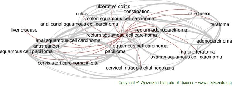 Diseases related to Rectum Squamous Cell Carcinoma