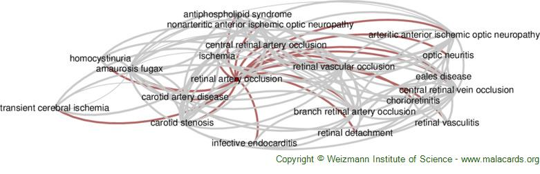 Diseases related to Retinal Artery Occlusion