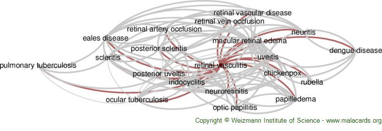 Diseases related to Retinal Vasculitis