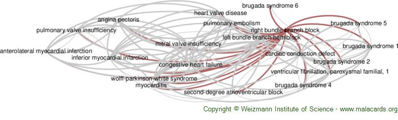 Diseases related to Right Bundle Branch Block