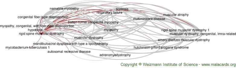 Diseases related to Rigid Spine Muscular Dystrophy