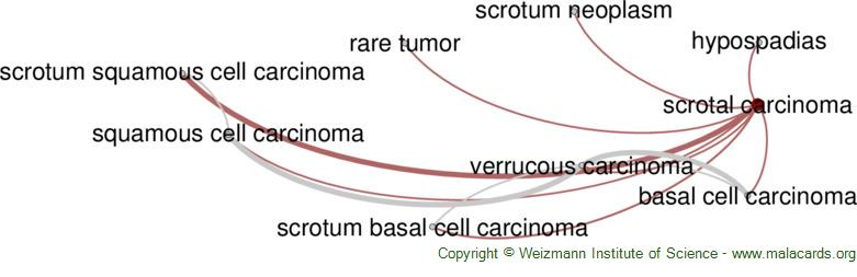 Diseases related to Scrotal Carcinoma