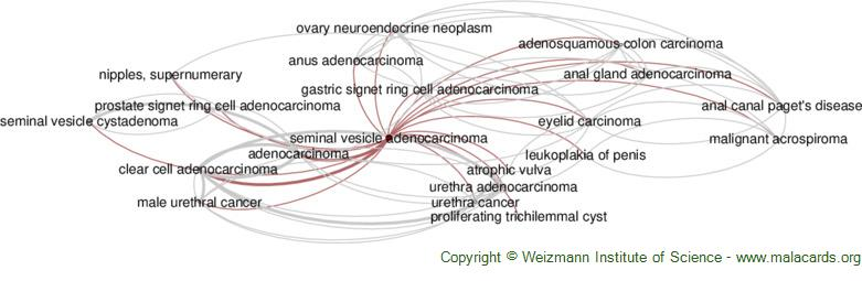 Diseases related to Seminal Vesicle Adenocarcinoma