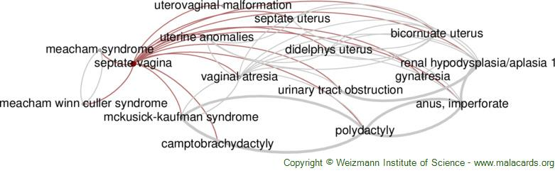 Diseases related to Septate Vagina