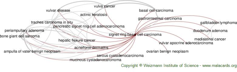 Diseases related to Signet Ring Basal Cell Carcinoma