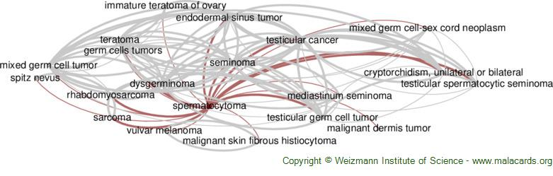 Diseases related to Spermatocytoma