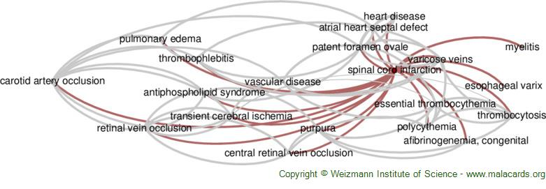 Diseases related to Spinal Cord Infarction