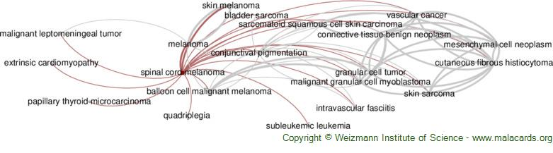 Diseases related to Spinal Cord Melanoma