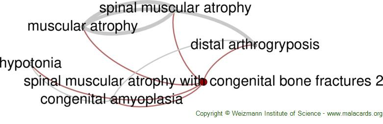 Diseases related to Spinal Muscular Atrophy with Congenital Bone Fractures 2