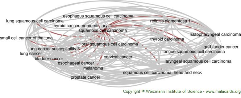 Diseases related to Squamous Cell Carcinoma