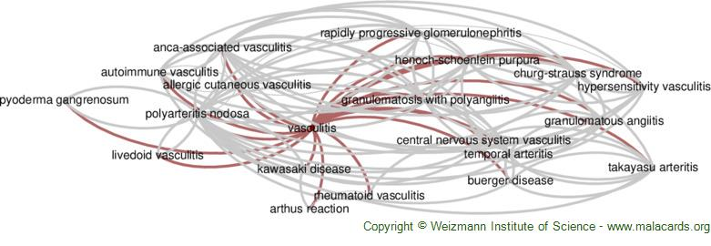 Diseases related to Vasculitis