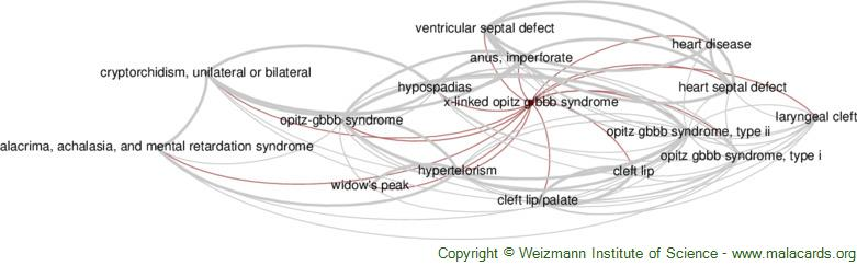 Diseases related to X-Linked Opitz G/bbb Syndrome