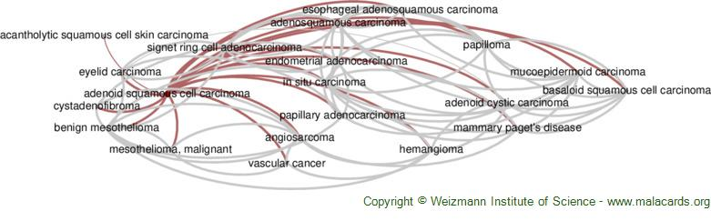 Diseases related to Adenoid Squamous Cell Carcinoma