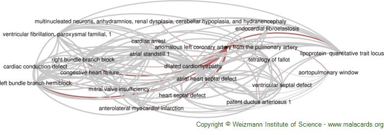 Diseases related to Anomalous Left Coronary Artery from the Pulmonary Artery