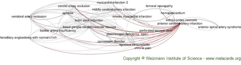 Diseases related to Anterior Cerebral Artery Infarction