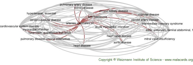 Diseases related to Arteries, Anomalies of