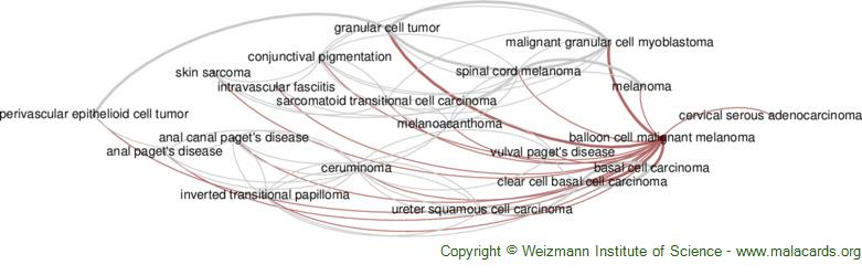 Diseases related to Balloon Cell Malignant Melanoma