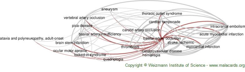 Diseases related to Basilar Artery Occlusion