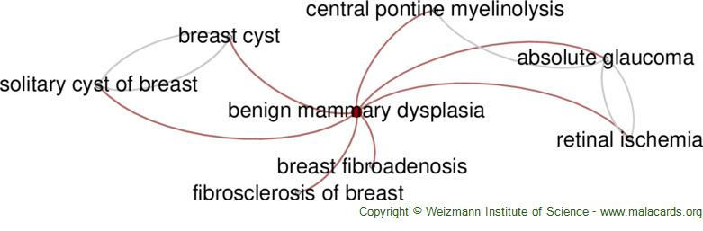 Diseases related to Benign Mammary Dysplasia
