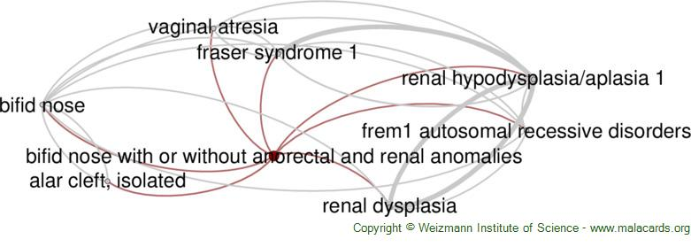 Diseases related to Bifid Nose with or Without Anorectal and Renal Anomalies