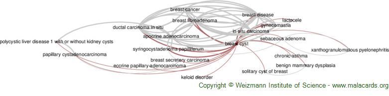 Diseases related to Breast Cyst