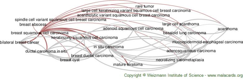 Diseases related to Breast Squamous Cell Carcinoma