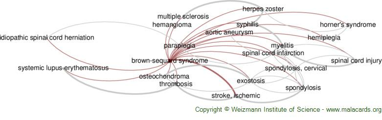 Diseases related to Brown-Sequard Syndrome
