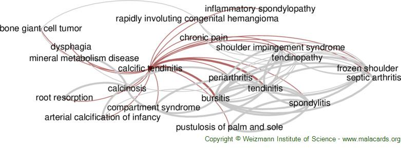 Diseases related to Calcific Tendinitis